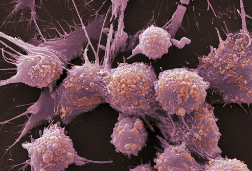 princ_rm_photo_of_prostate_cancer_cells