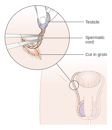 Diagram_showing_how_the_testicle_is_removed_(orchidectomy)_CRUK_141.svg